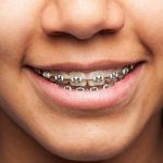 Sonrisa mujer ortodoncia / Foto de Asier Romero